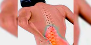 Tratamiento de la osteoporosis para mujeres – como prevenir la pérdida de hueso
