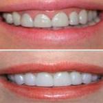 Estetica-rosa-para-el-tratamiento-dental