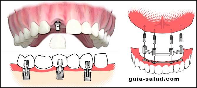 Cuánto Cuesta Un Tratamiento De Implantología Dental