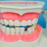 El Turismo De Tratamientos Dentales En México, Una Tendencia Entre Los Estadounidenses