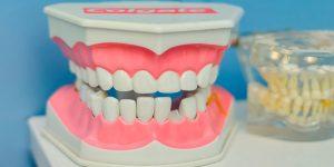Turismo De Tratamientos Dentales En México