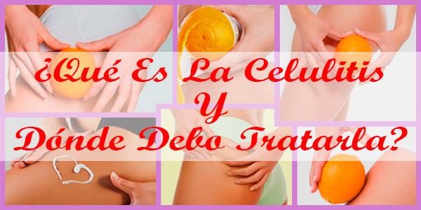 ¿Qué Es La Celulitis Y Dónde Debo Tratarla?
