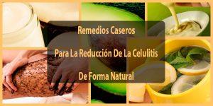 Remedios Caseros Para La Reducción De La Celulitis De Forma Natural
