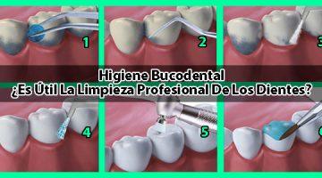 Higiene Bucodental: ¿Es Útil La Limpieza Profesional De Los Dientes?