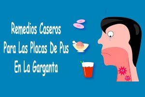 Remedios Caseros Para Las Placas De Pus En La Garganta