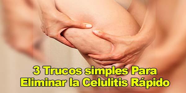 3 Trucos simples Para Eliminar la Celulitis Rápido