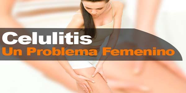 Celulitis un problema femenino