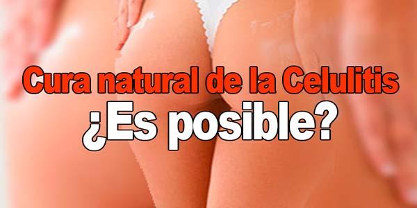 Cura natural de la Celulitis: ¿Es posible?