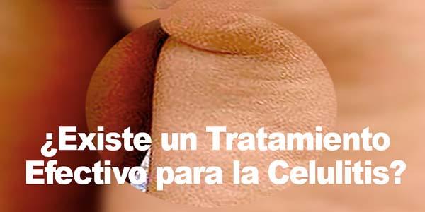 ¿Existe un Tratamiento Efectivo para la Celulitis?