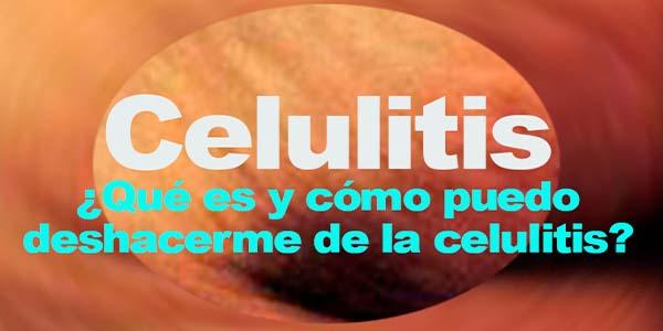 Celulitis – ¿Qué es y cómo puedo deshacerme de la celulitis?