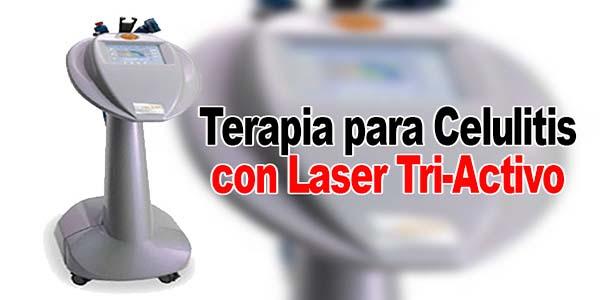 Terapia para Celulitis con Láser Tri-Activo