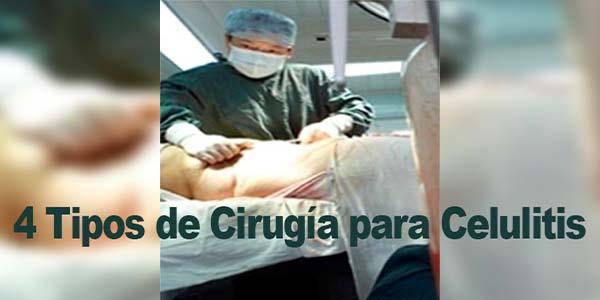 4 Tipos de Cirugía para Celulitis