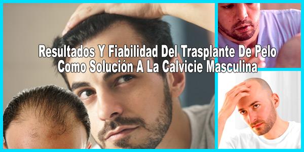 Trasplante De Pelo Como Solución A La Calvicie Masculina